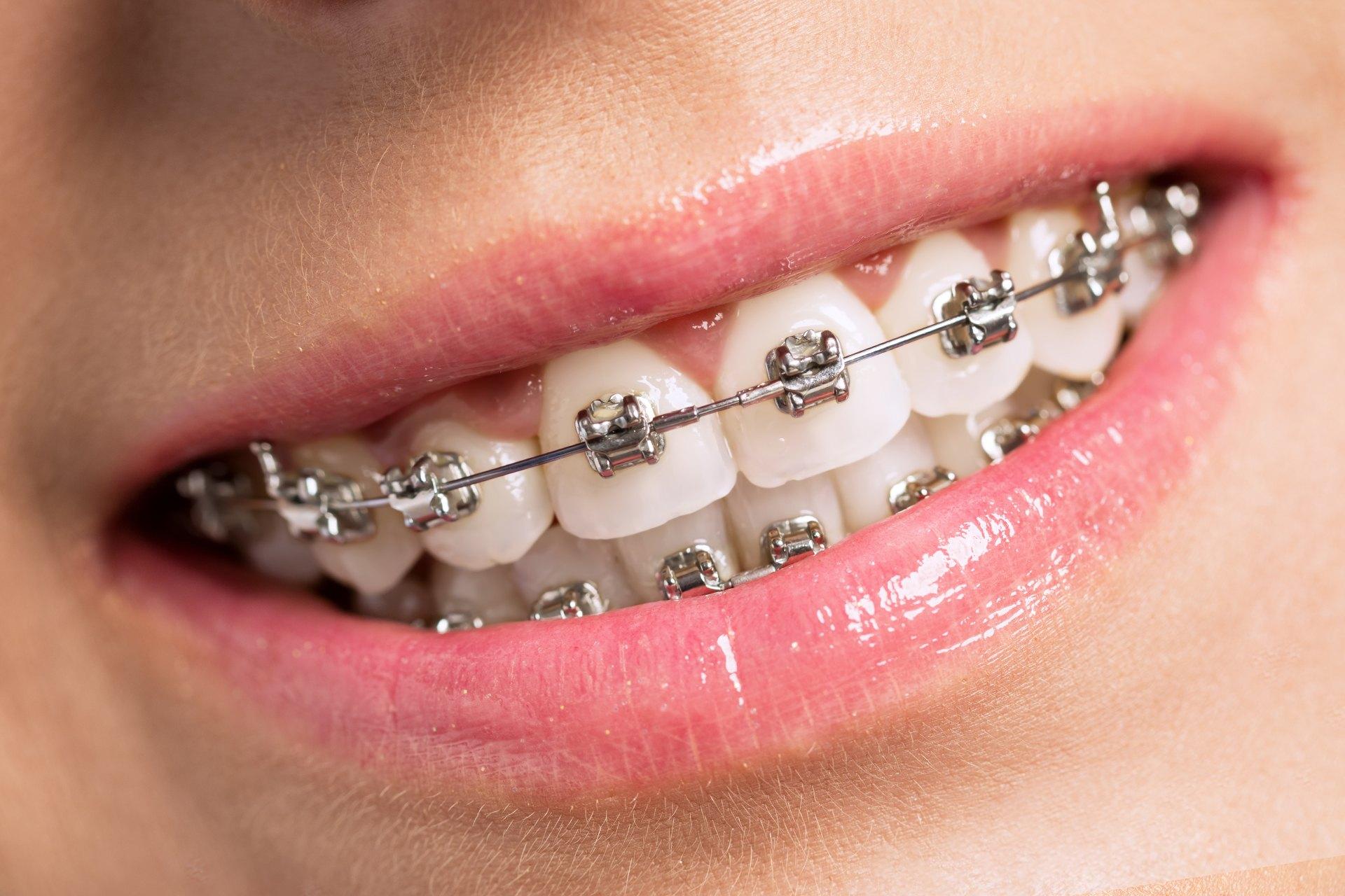 metal-braces-dentalia-demo-1