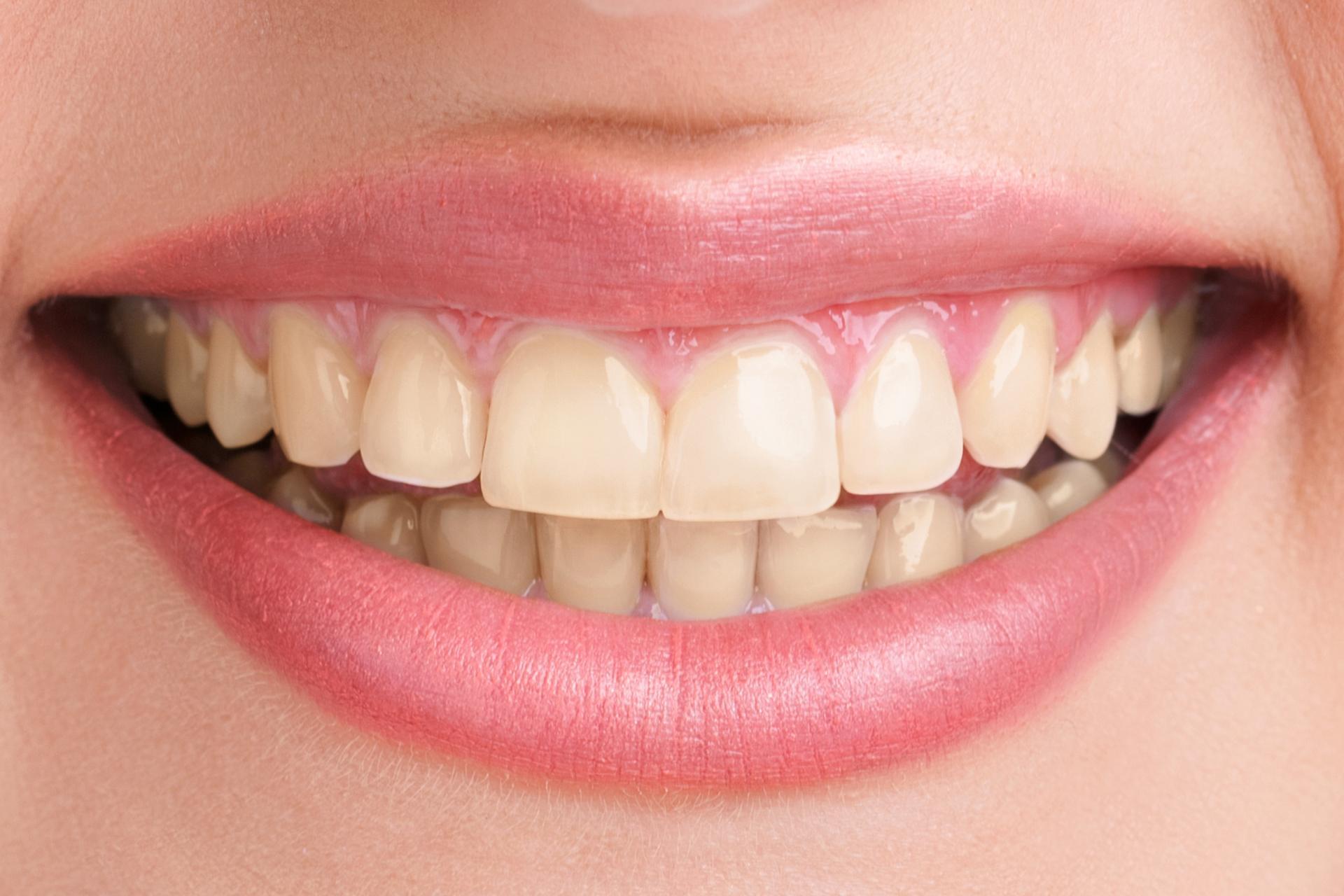 teeth-whitening-before-1